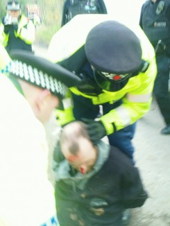 "Peaceful Fracking protester injured during arrest for ""obstruction of the highway"" on Barton Moss Road, a private Road. Photo by Steve Spy."