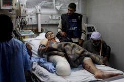 anne-paq-injured